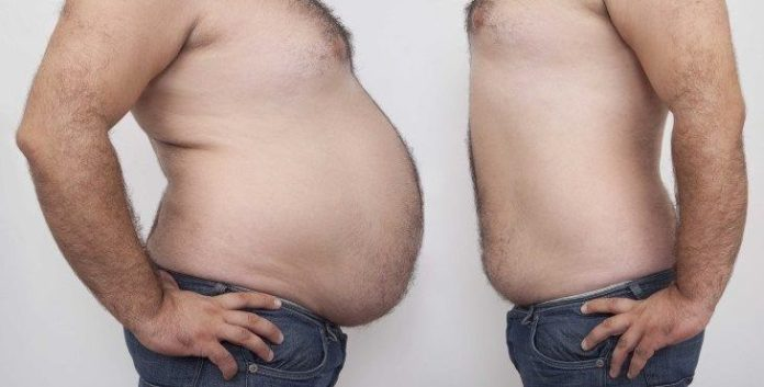 علاج تراكم الدهون في البطن