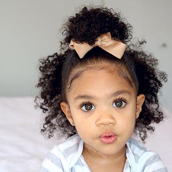 علاج تقصف الشعر الشديد عند الاطفال