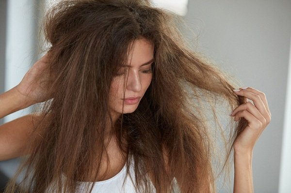 علاج تقصف الشعر الشديد من الامام