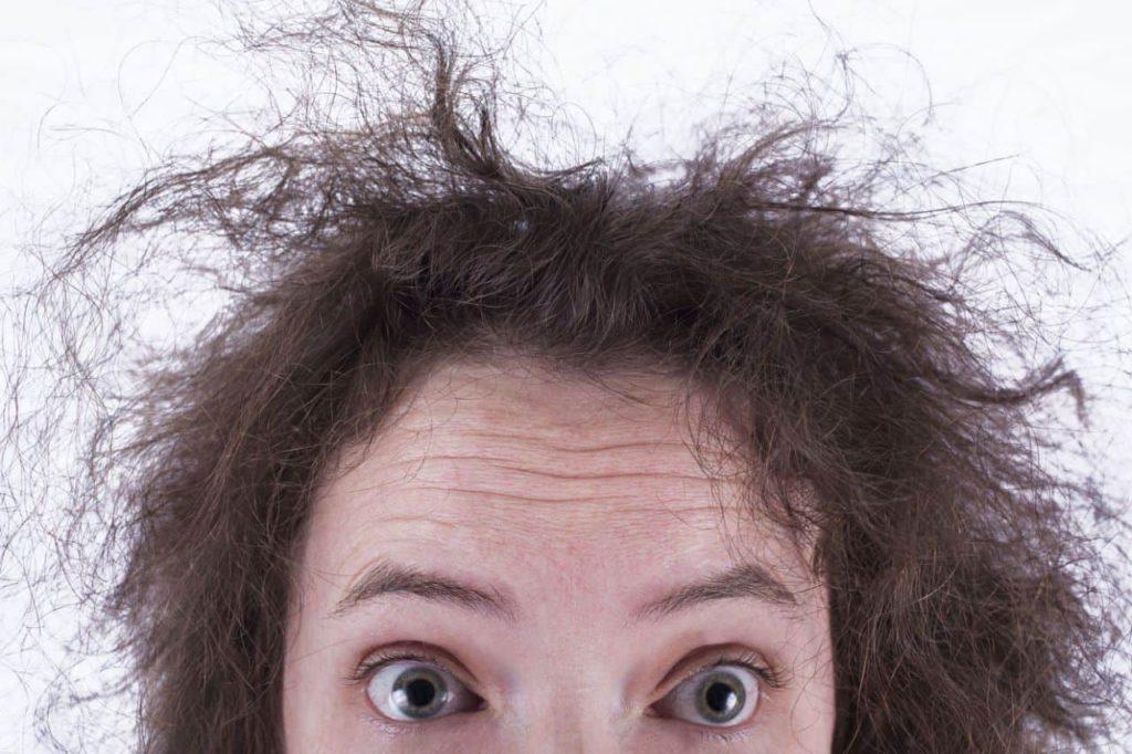 علاج تقصف الشعر من الامام