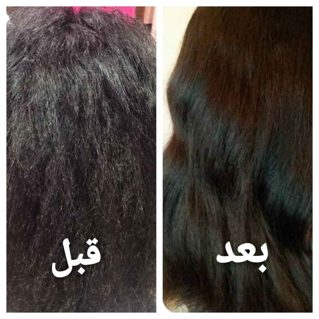 علاج تلف الشعر الشديد