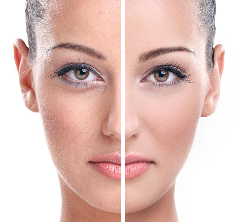 عمليات تجميل الجسم والوجه
