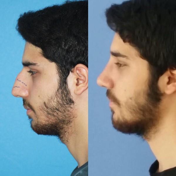 عملية تجميل أنف الرجال