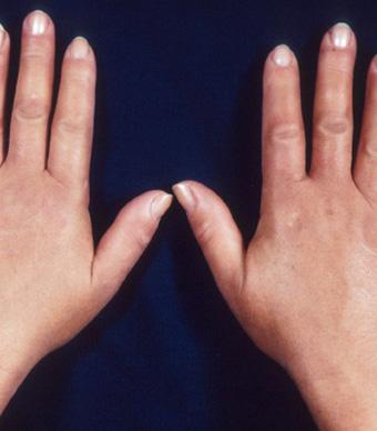 أسعار العمليات الخاصة بتجميل اليدين