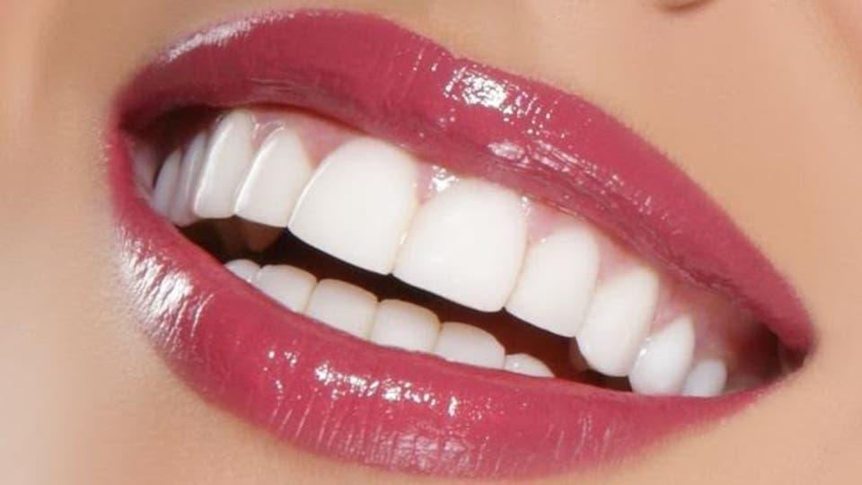 ابتسامة هوليود