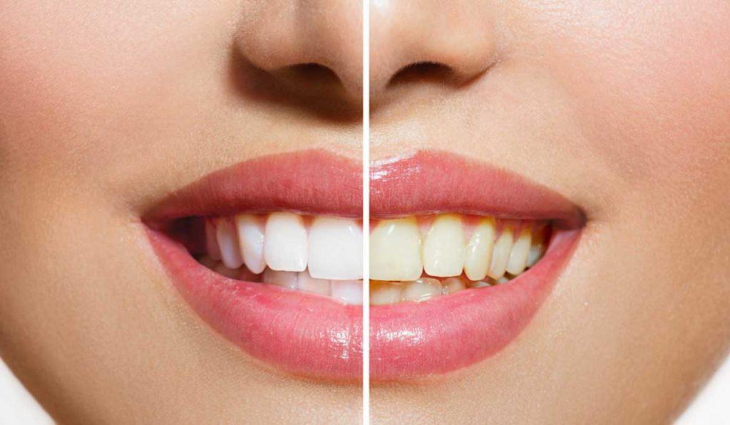 ازالة اصفرار الاسنان عند الطبيب