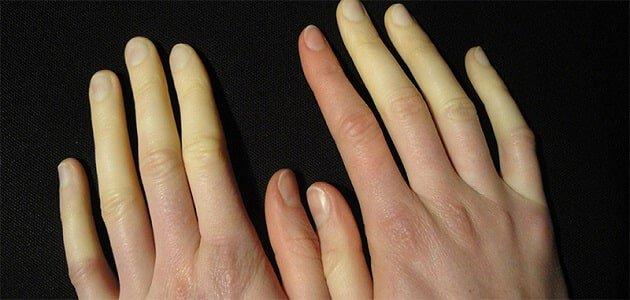 افضل كريم طبي لعلاج تجاعيد اليدين