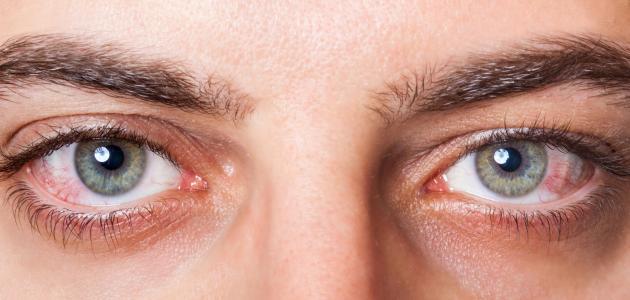 الاهتمام بمنطقة العينين