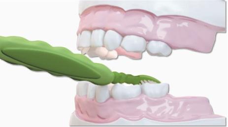 الخطوة 2 تنظيف الاسنان للاطفال