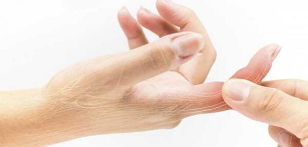 انتفاخ الاصبع الوسطى في اليد