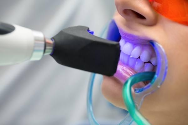 تبييض الاسنان بالليزر كم يدوم