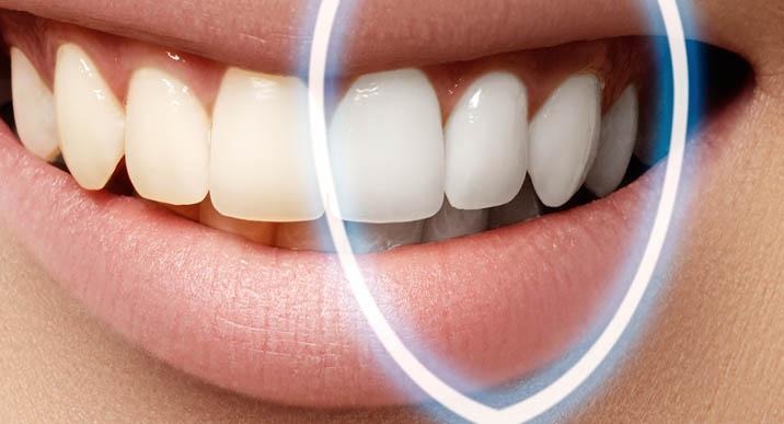 تبييض الاسنان عند الطبيب