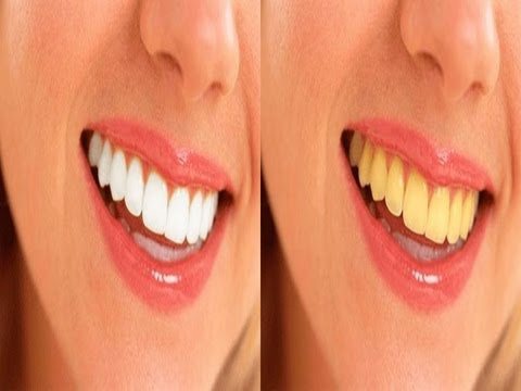 تجارب تبييض الاسنان طبيعيا
