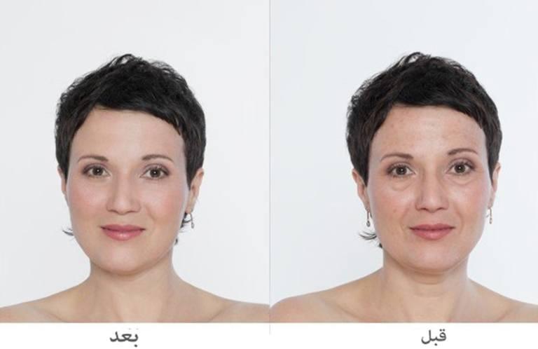 تجميل الوجه بالفيلر قبل وبعد