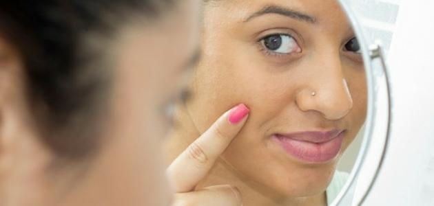 تصبغات الوجه السوداء
