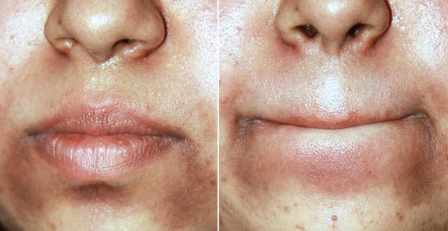 ازالة السواد حول الفم بسرعة