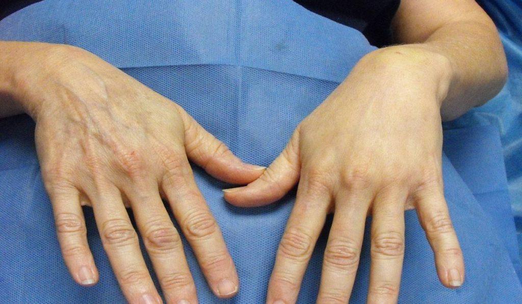 تكلفة عملية تجميل اليدين