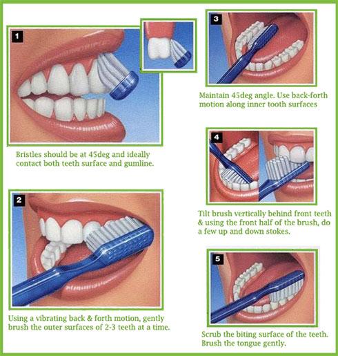 بالصور تنظيف الاسنان للاطفال