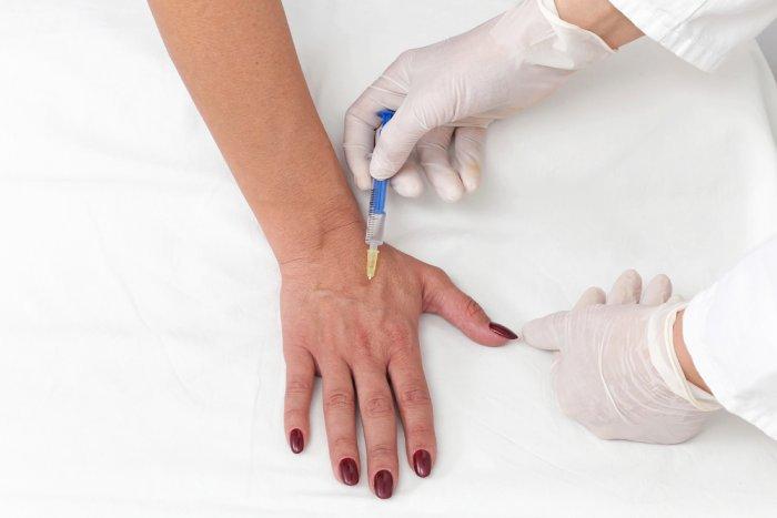 جراحة تجميل اليد