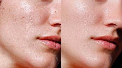 خلطات تبيض الوجه وازالة البقع