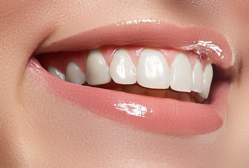 خلطة تبييض الأسنان طبيعية