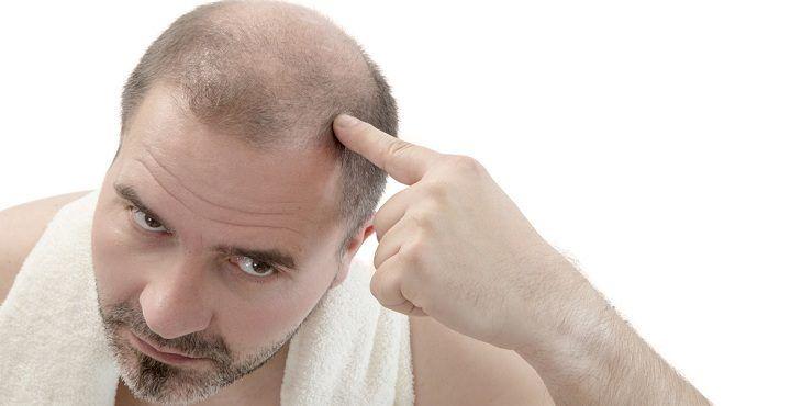 زيت لتساقط الشعر للرجال