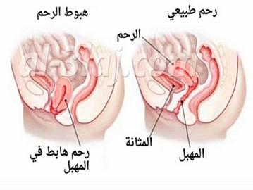 طرق علاج هبوط الرحم طبيعيا