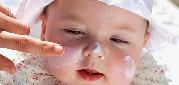 علاج اسمرار بشرة الاطفال من الشمس