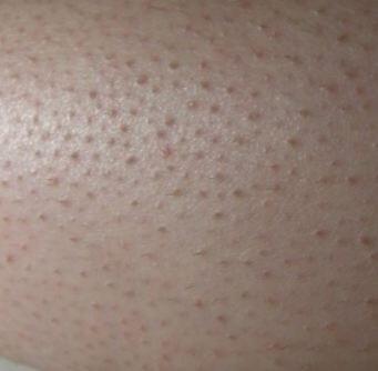 علاج الحبوب بعد ازالة الشعر من المناطق الحساسة