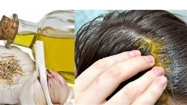 علاج تساقط الشعر للرجال بالثوم