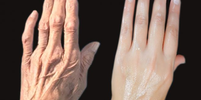 علاج شيخوخة اليدين