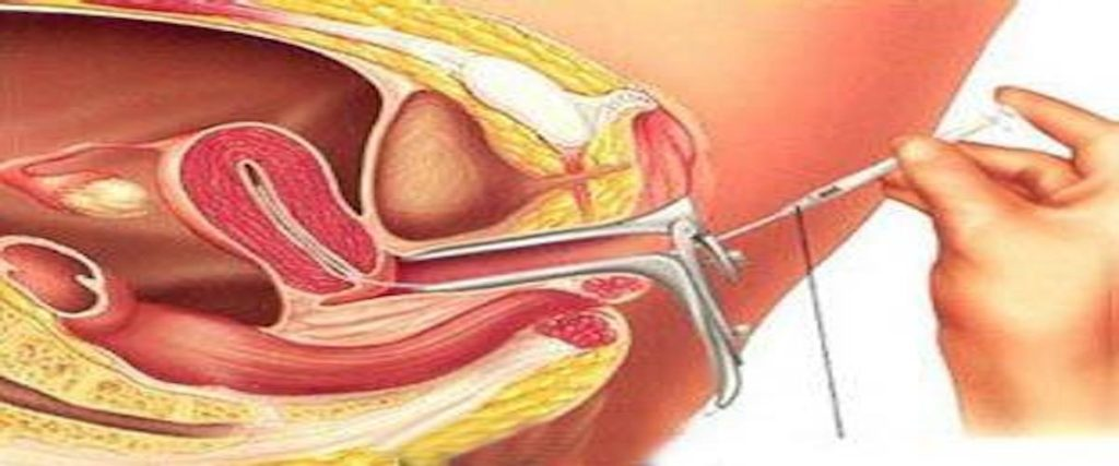 عملية تضييق المهبل جراحيا