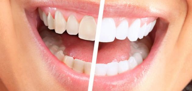 وصفات تبييض الاسنان طبيعيا