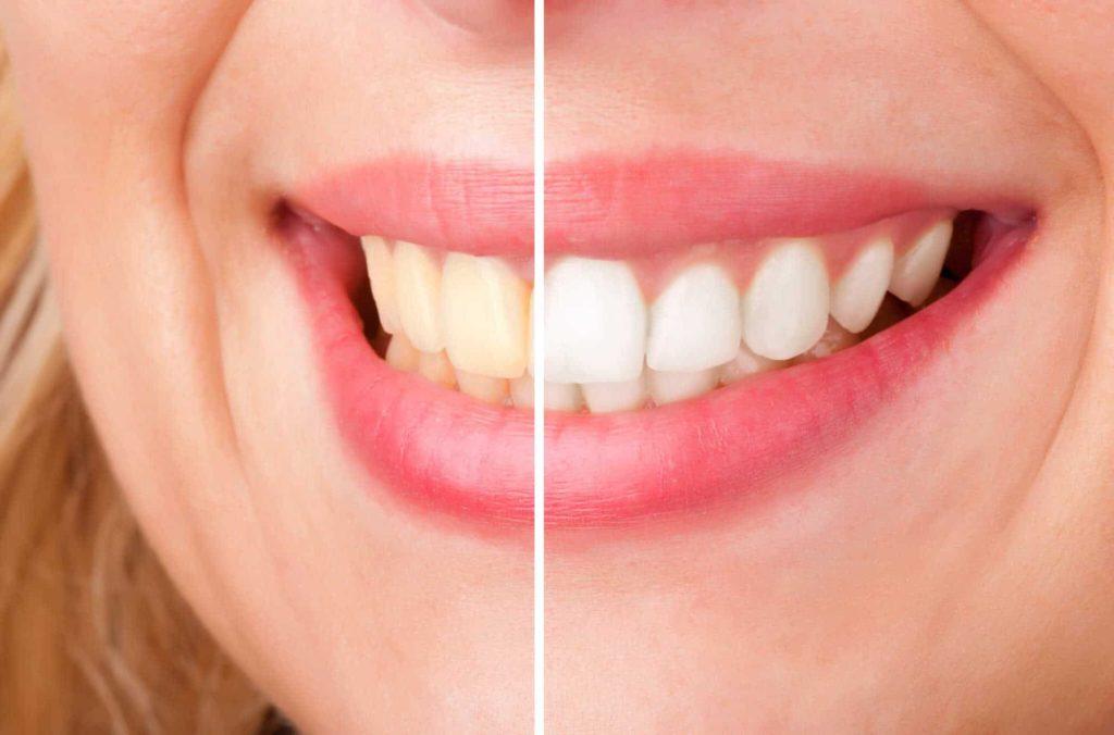 وصفة سهلة لتبيض الاسنان