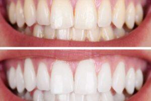وصفة لتبيض الاسنان في دقيقة