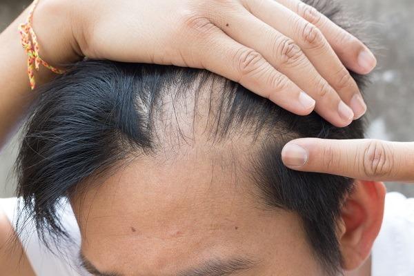 اسباب تساقط الشعر الدهني للرجال