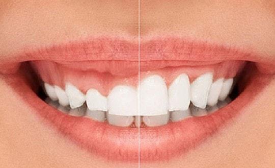 أسعار تبييض الأسنان بالليزر في بريطانيا وكندا