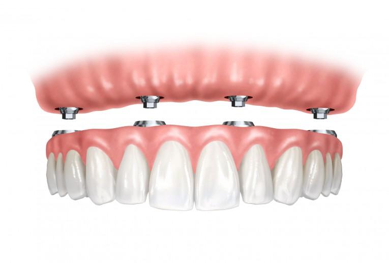 اخطاء زراعة الاسنان