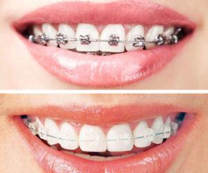 اسعار تقويم الاسنان 2020