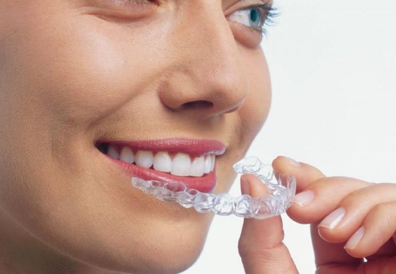 اسعار علاج الاسنان في تركيا