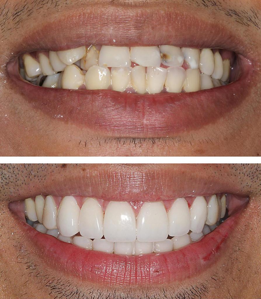 اضرار تركيب الاسنان الثابتة