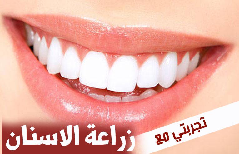 عدد زرعات الاسنان