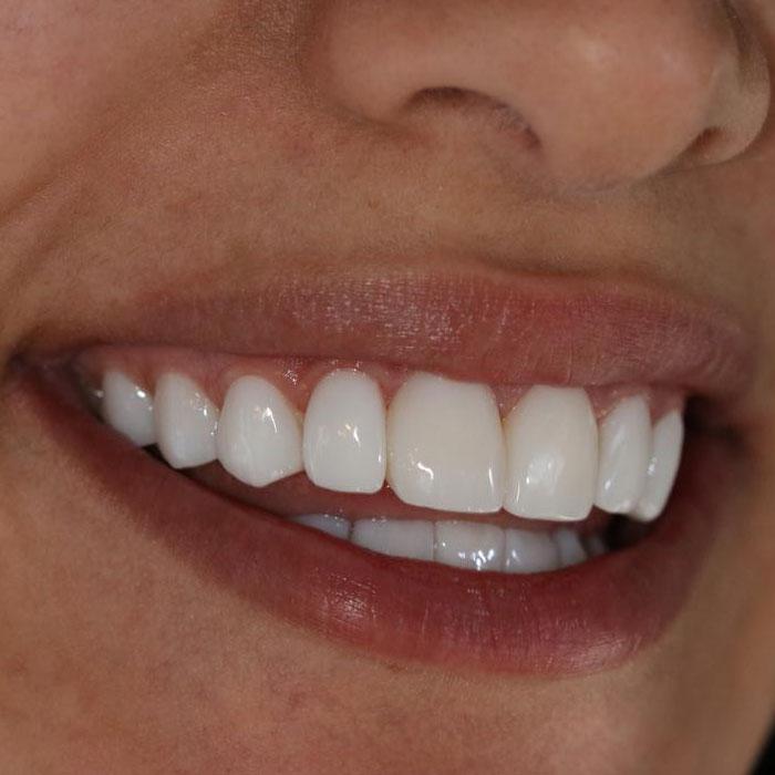 افضل انواع تبييض الاسنان
