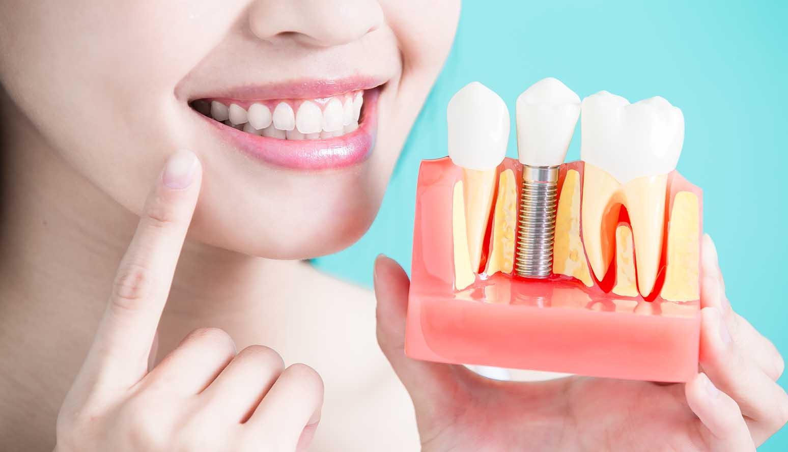 عيادات تجميل الاسنان في تركيا