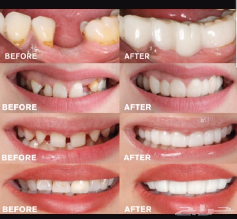 المرشحون لتقنية تركيب الأسنان الفورية