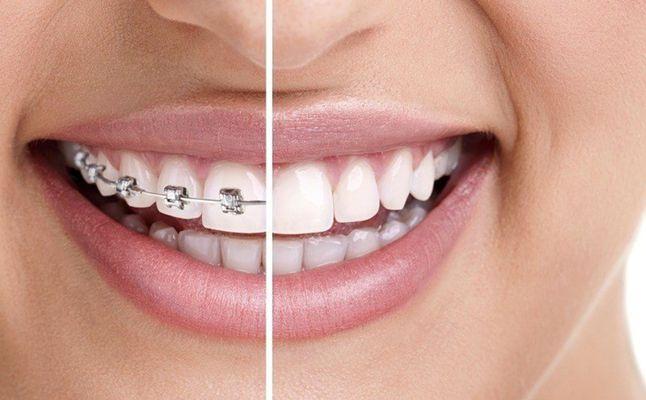 الم تقويم الاسنان