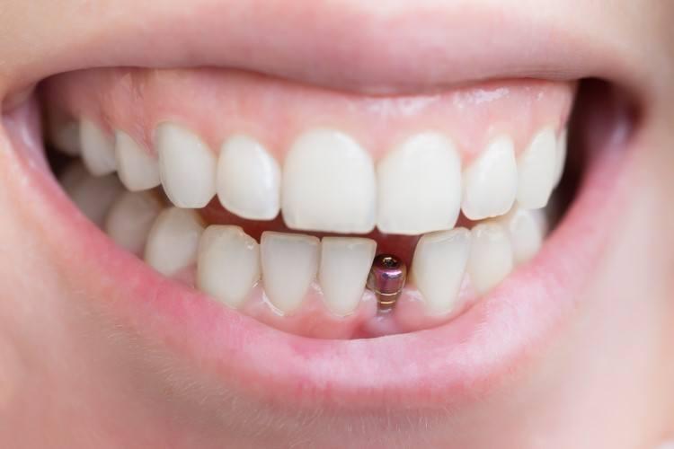 الم زراعة الاسنان