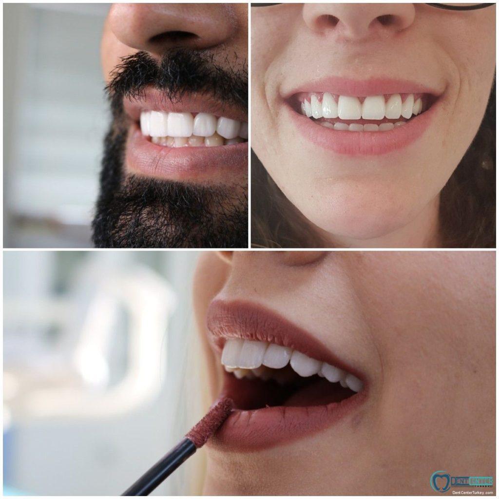 انواع عدسات ابتسامة هوليود