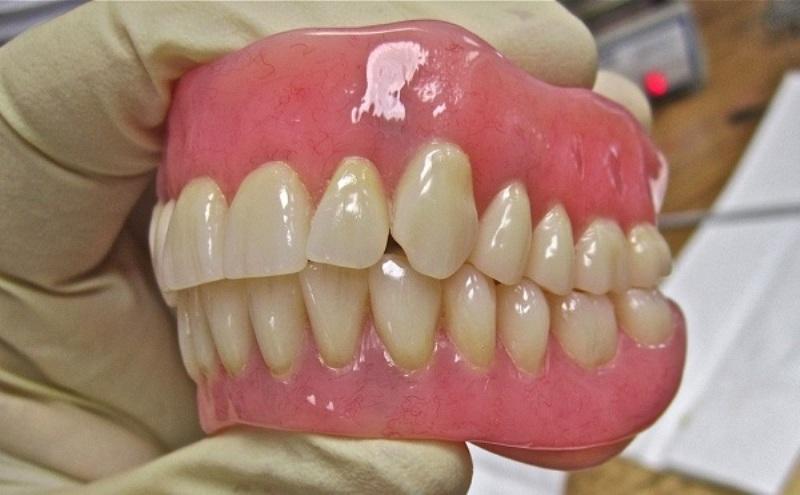 بعد تركيب الاسنان