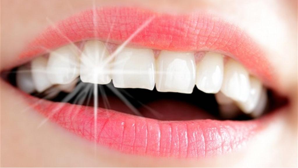 تجربتي في زراعة الاسنان